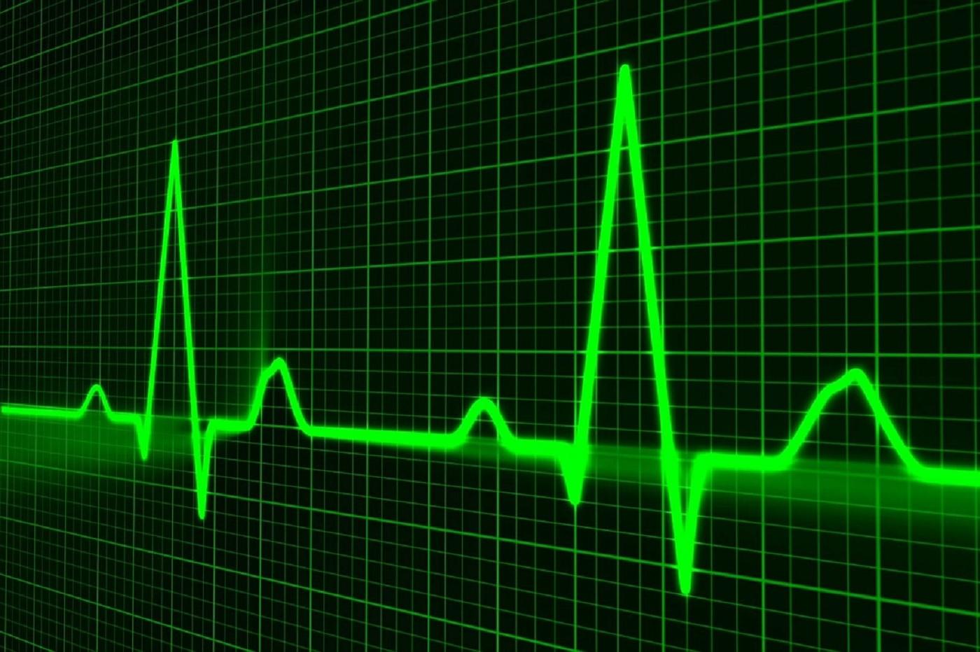 Santé médecine impulsion coeur