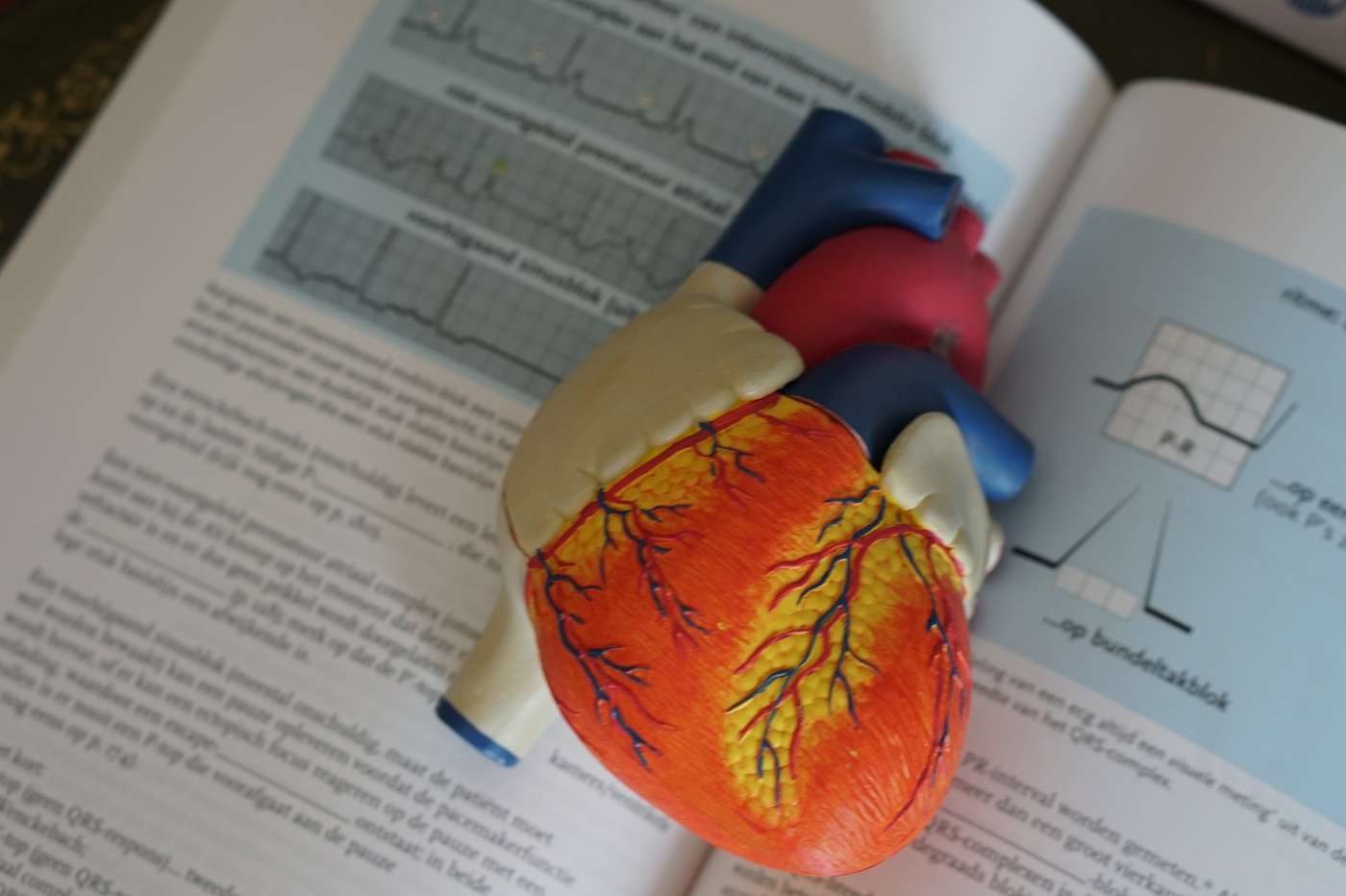IA coeur