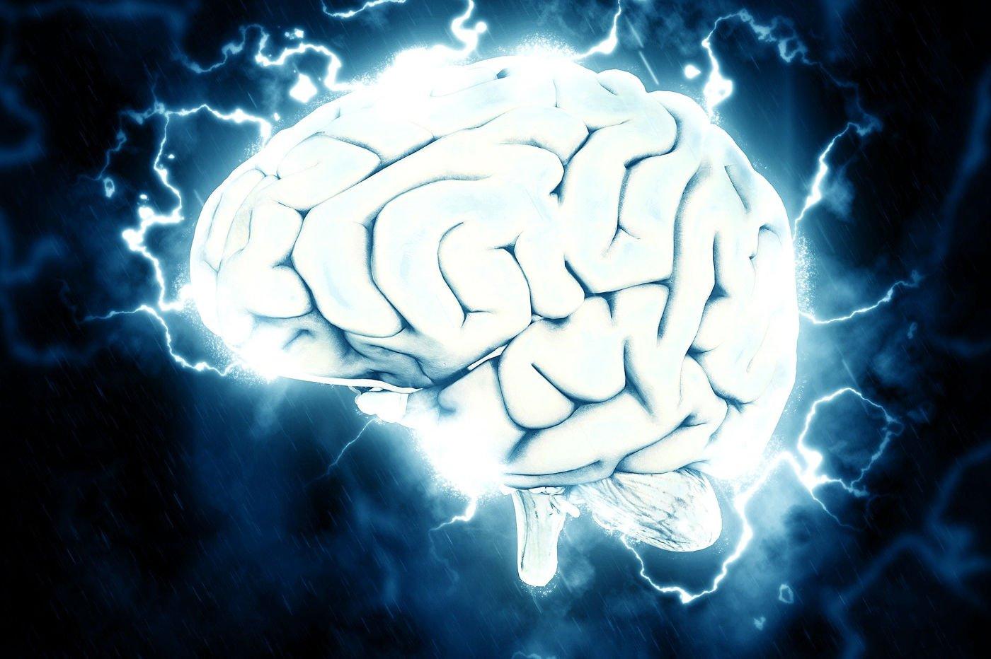 IA-Cerveau