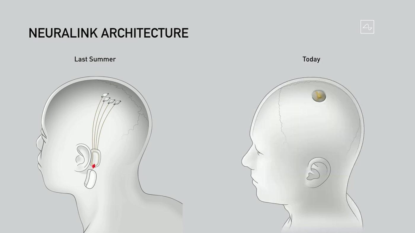 Neuralink The Link